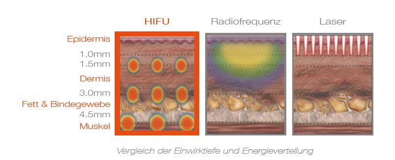 HIFU - RF - Laser